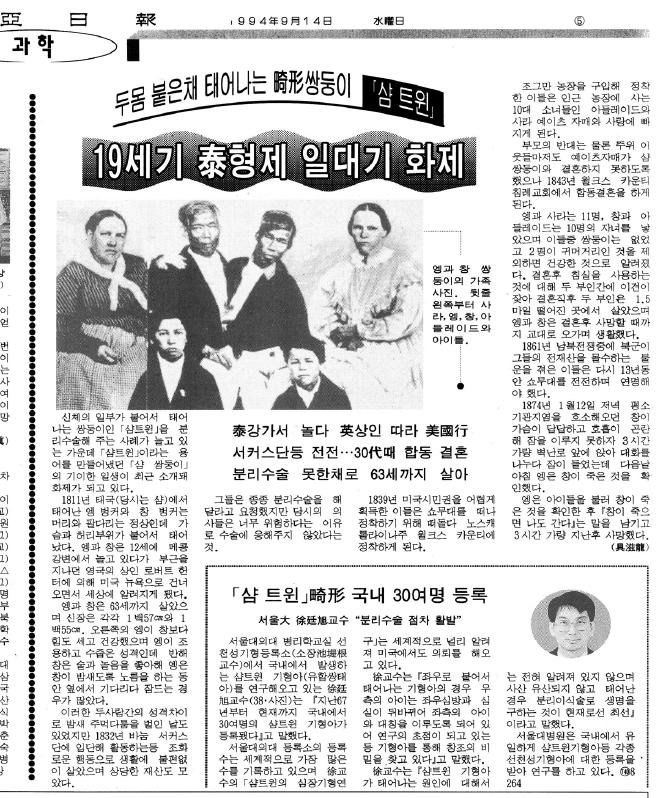 19940914 샴쌍둥이 동아일보.PNG